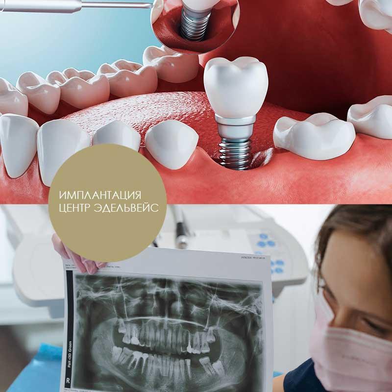стоматологическая имплантация центр Эдельвейс Москва