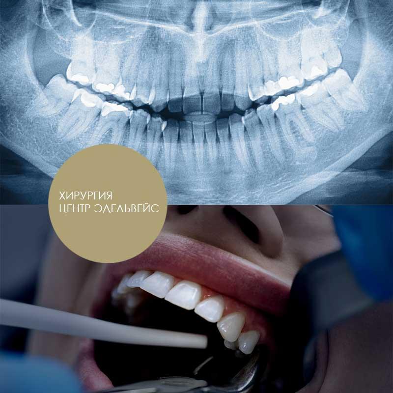 стоматологическая хирургия в центре Эдельвейс Москва